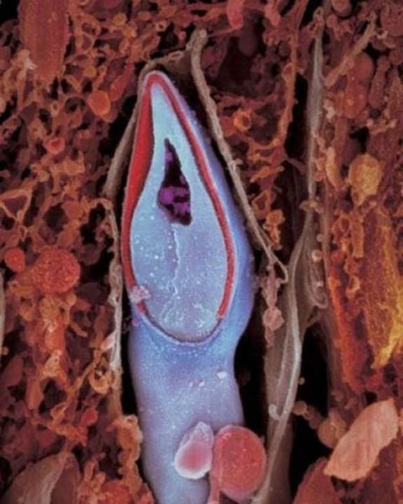 http://estaticos.tonterias.com/wp-content/uploads/2011/09/evolucion-feto-bebe-07.jpg